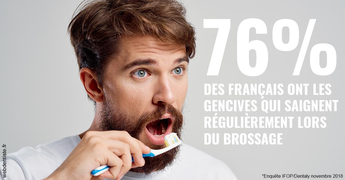 https://dr-piquand-marie-laure.chirurgiens-dentistes.fr/76% des Français 2
